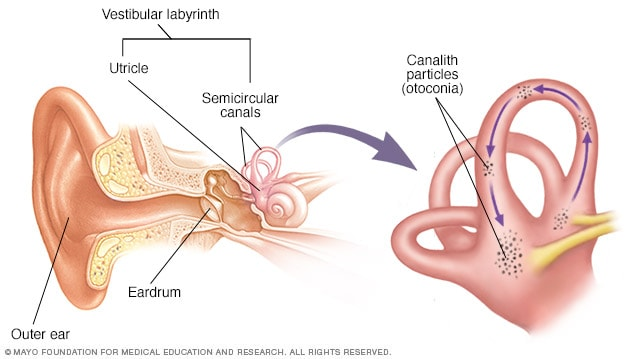 Illustration showing the inner ear and canalith repositioning