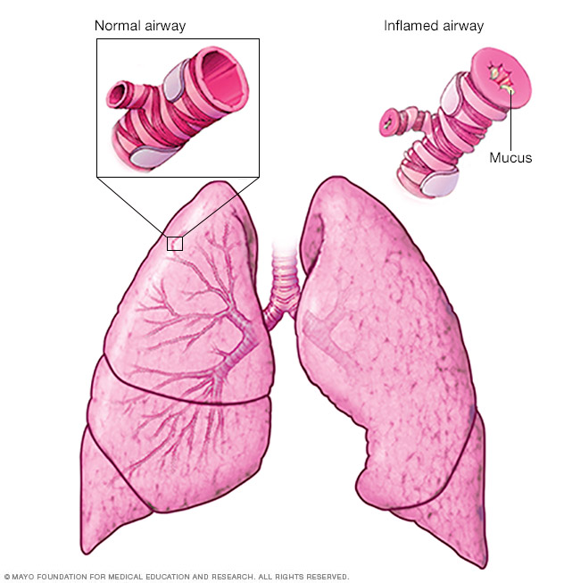 Illustration of what happens during an asthma attack