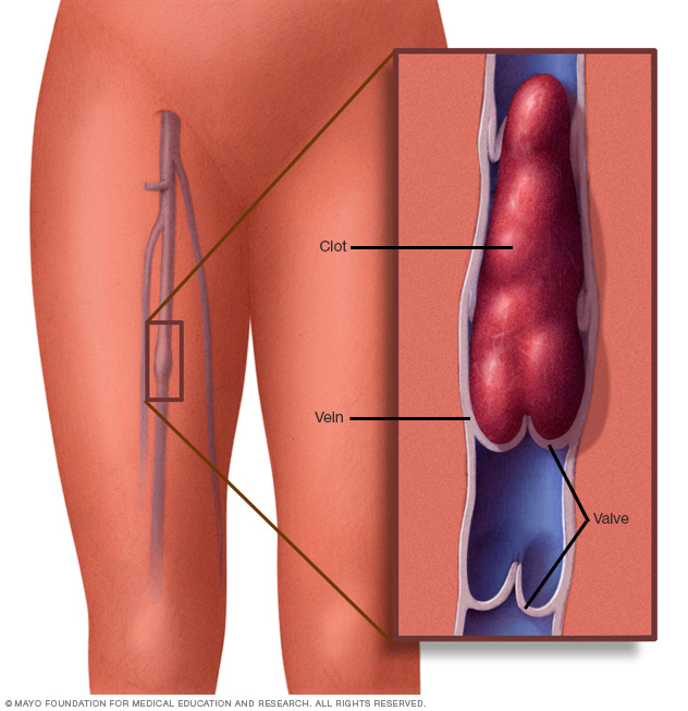 Illustration showing blood clot in leg