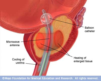 Illustration of transurethral microwave therapy (TUMT)