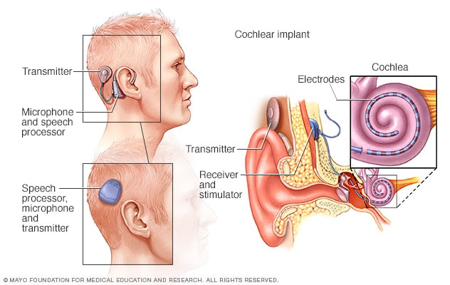 Image showing how cochlear implants work