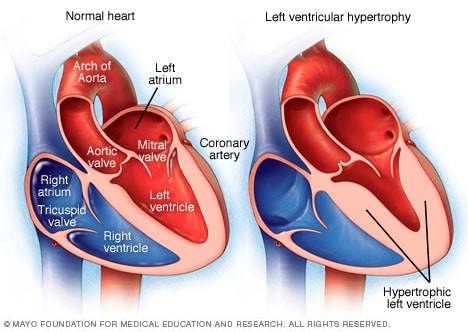 Illustration showing left ventricular hypertrophy
