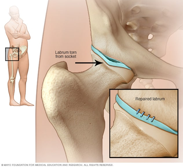 Illustration showing hip labral tear