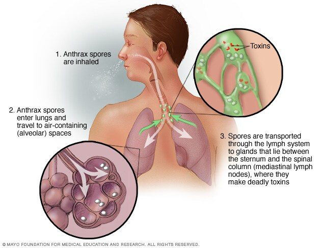 Illustration of inhalation anthrax