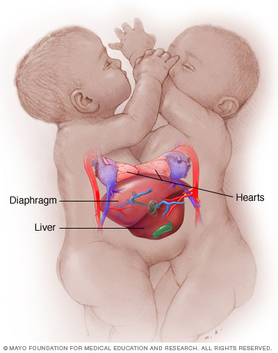 Illustration showing conjoined twins