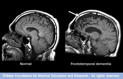 MRI images comparing a normal brain with one showing shrinkage in the frontal lobes.