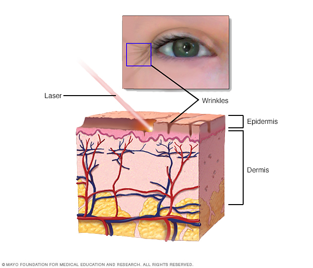 Illustration showing how laser resurfacing is done