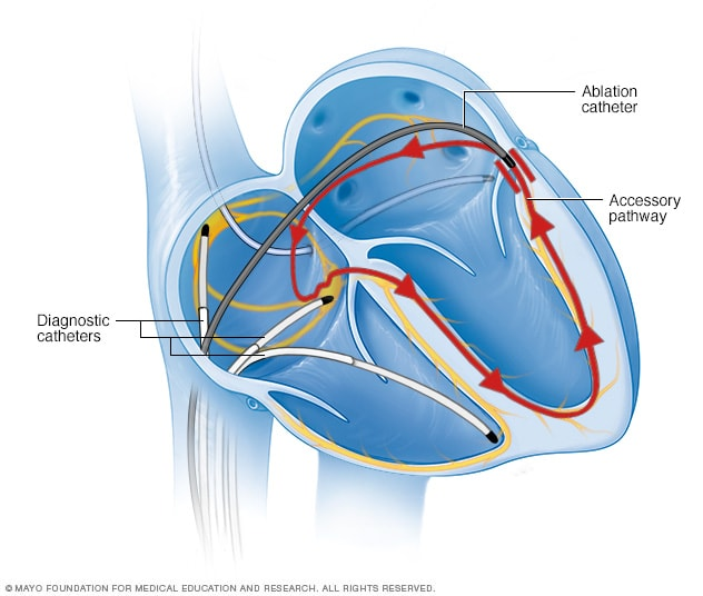 Illustration showing cardiac catheter ablation