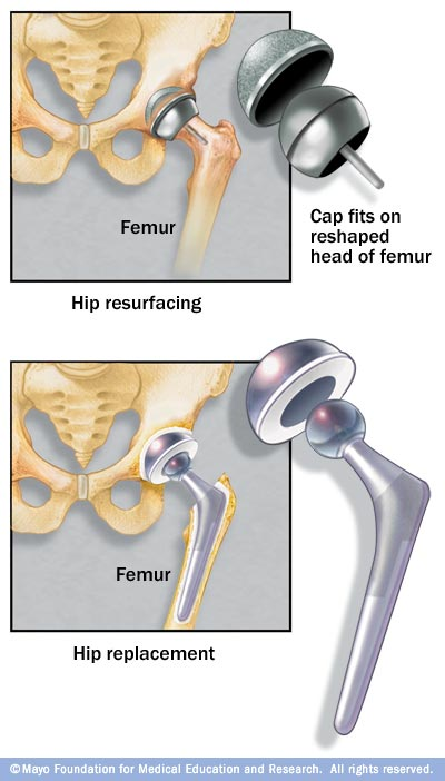 Illustration showing differences between hip resurfacing and hip replacement