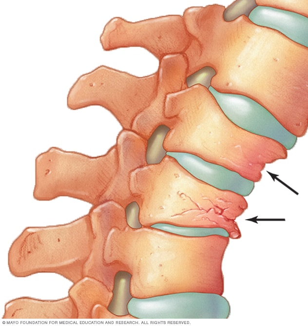 How osteoporosis can cause vertebrae to crumple and collapse.