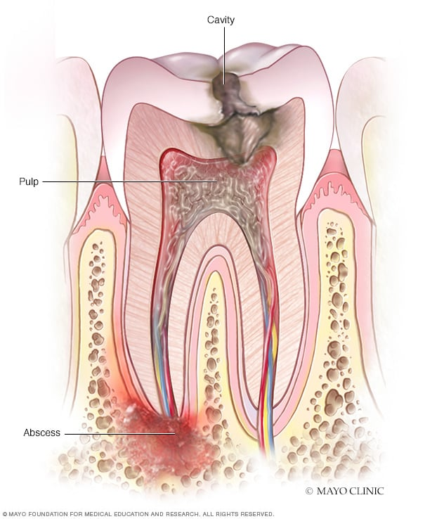 Periapical tooth abscess