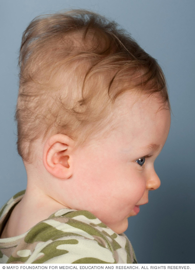 Photo of baby with positional molding