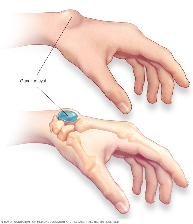 Illustration showing ganglion cyst