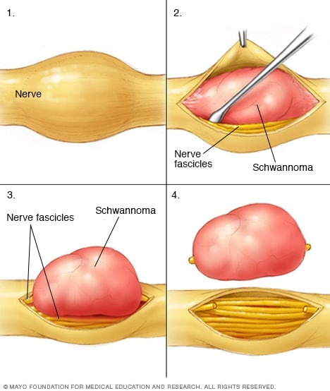 Illustration of a schwannoma