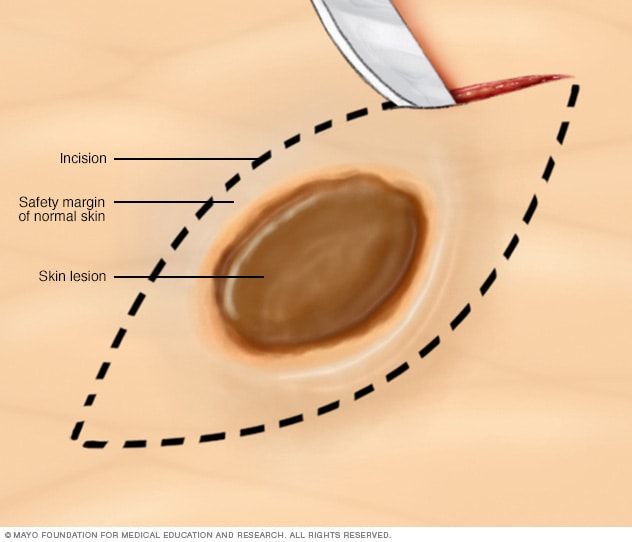 Illustration showing excisional biopsy of the skin