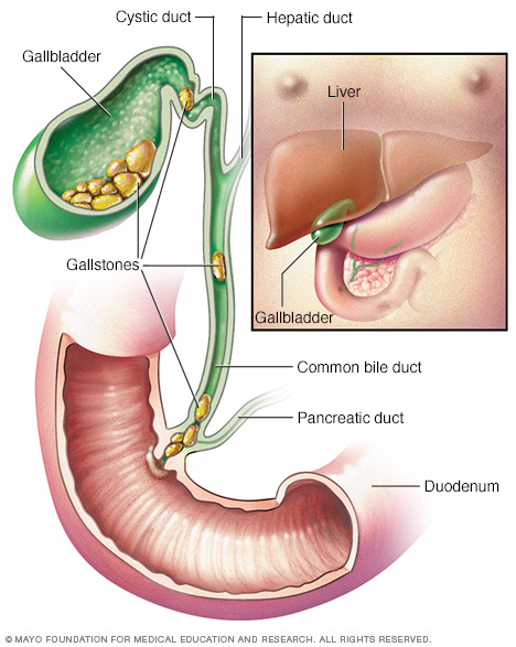 Illustration showing gallbladder and gallstones