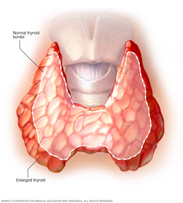 Illustration showing enlarged thyroid