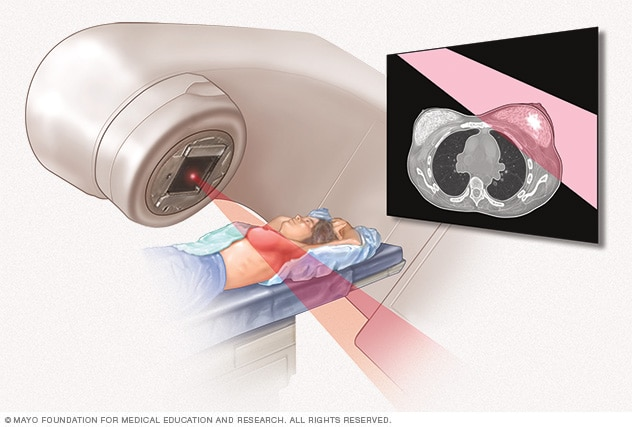 Illustration of radiation therapy for breast cancer
