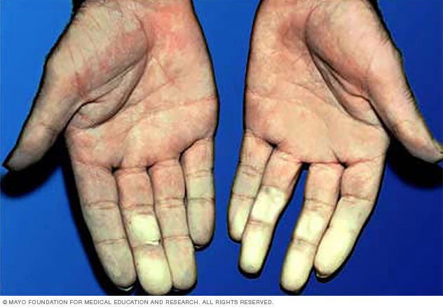 Photograph showing hands affected by Raynaud's disease