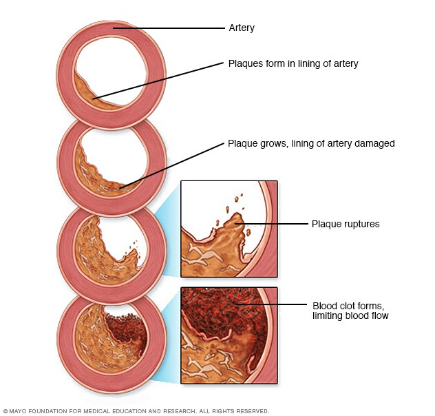 Illustration showing development of atherosclerosis
