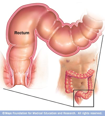 Illustration showing the rectum