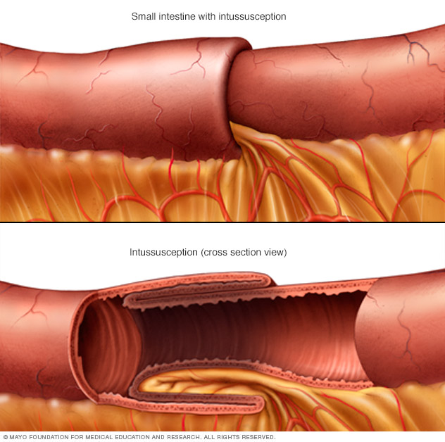 Illustration showing intussusception
