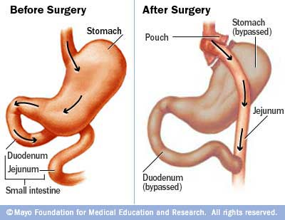 Illustration showing gastric bypass surgery