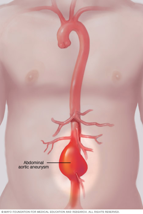 Illustration showing abdominal aortic aneurysm