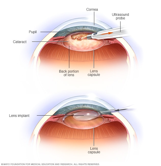 Illustration showing two of the steps in cataract surgery