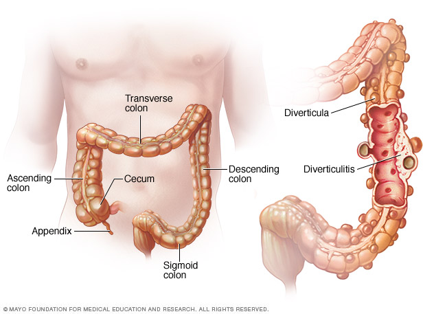 Illustration of pouches in digestive tract