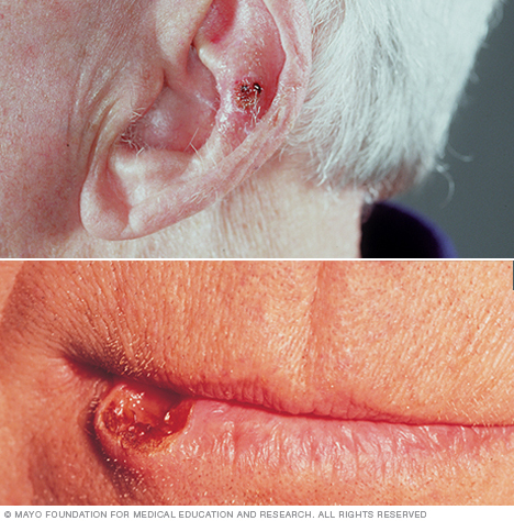 Photo of a squamous cell carcinoma on the ear and on the lip