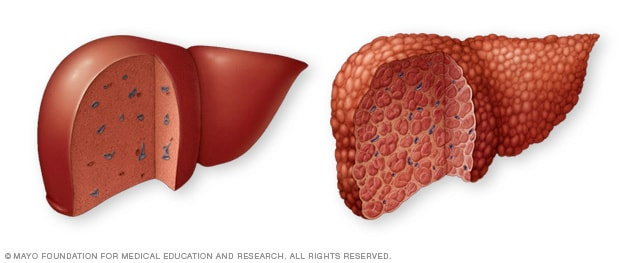 Illustration of a normal liver and liver cirrhosis