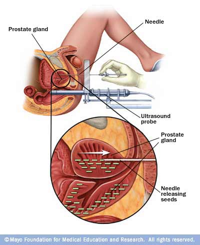 Illustration showing interstitial brachytherapy to treat prostate cancer