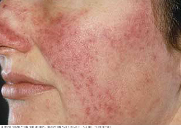 Image of rosacea on light skin
