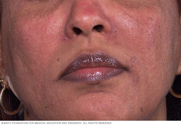 Image of rosacea on dark skin