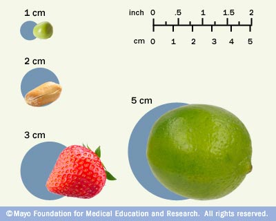 Illustration depicting tumor size