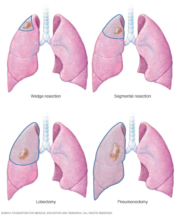Illustration of lung cancer surgery