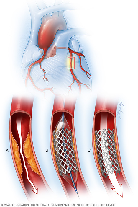 Illustration showing a coronary artery stent