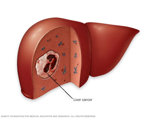 Illustration of liver cancer