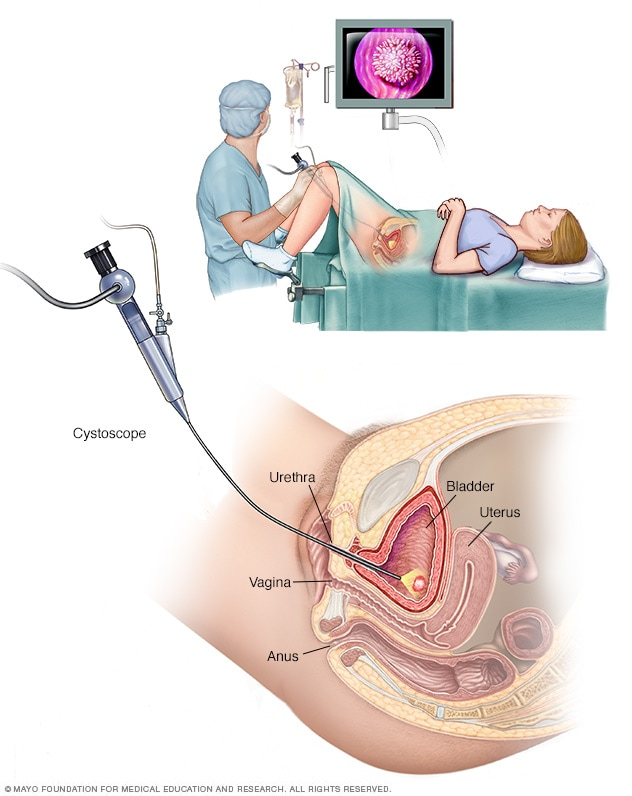 Illustration of cystoscopy being performed on a woman