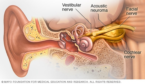 Illustration showing acoustic neuroma