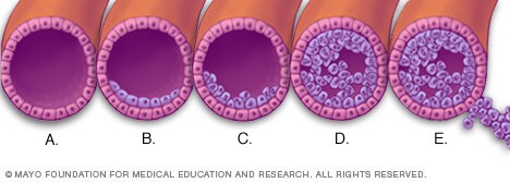 Illustration showing how breast cancer develops