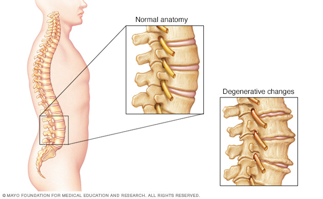 Illustration showing bone spurs and narrowed disks in the spine