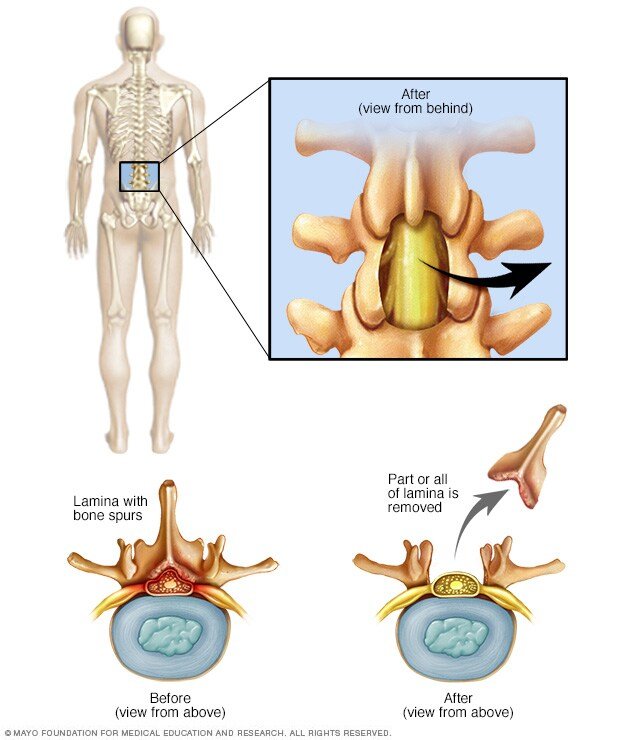 Illustration showing what is removed during a laminectomy