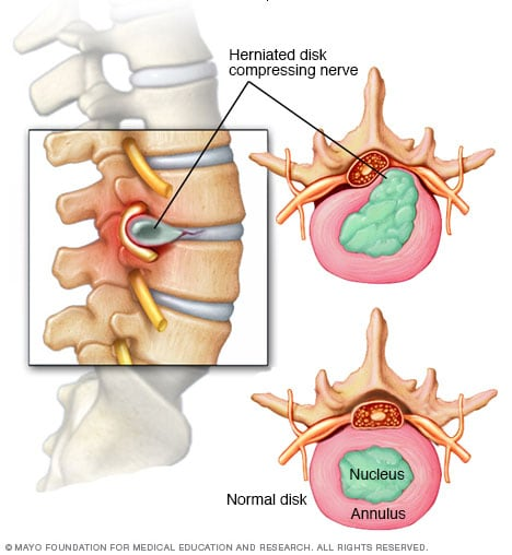 Illustration showing herniated spinal disk