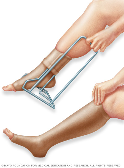 Illustration showing compression stockings