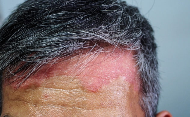 Image of scalp psoriasis