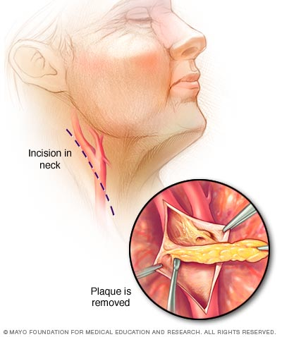 Illustration showing steps of carotid endarterectomy
