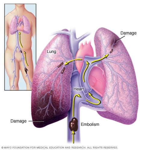 Illustration showing pulmonary embolism