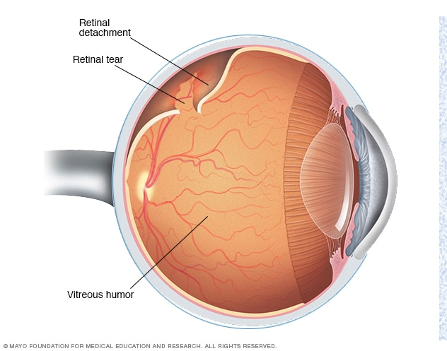 Illustration depicting retinal detachment
